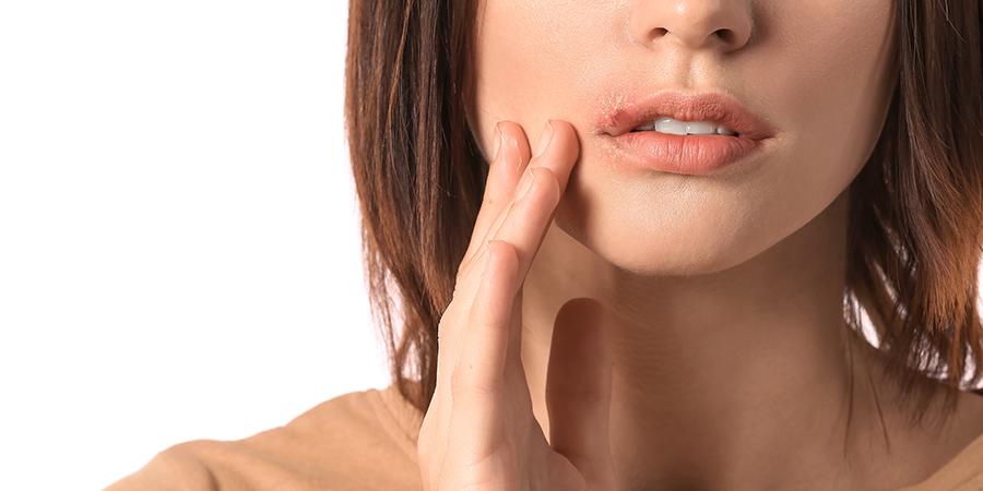 Herpes behandeln: Symptome richtig deuten und reagieren