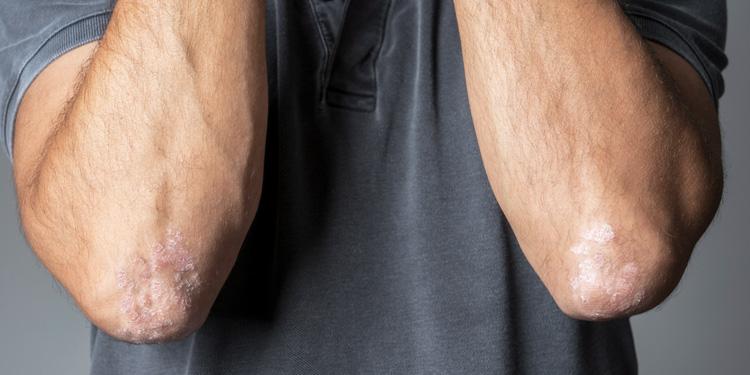 Schuppenflechte erkennen: Symptome von Psoriasis