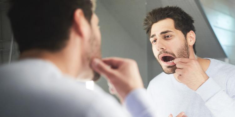 Mundschleimhautentzündung - Stomatitis